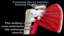 Shoulder Nerve injury
