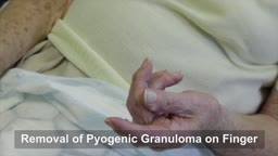Pyogenic Granuloma Surgery