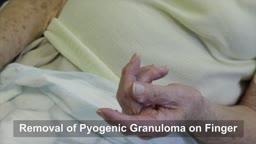 Pyogenic Granuloma Surgery