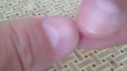 Quick Fingernail Test for Diabetes