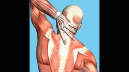 Upper Back Muscle Spasms