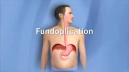 Anti-reflux Surgery