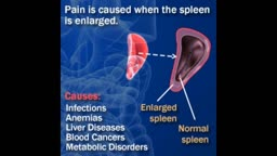 Spleen Pain Causes