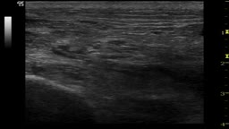 UltraSound-guided Sciatic nerve block