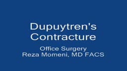 Needle Aponeurotomy Dupuytren's Contracture