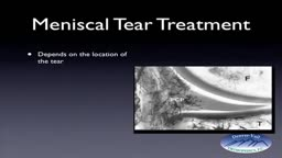 Meniscus Tear and Repair with Sutures