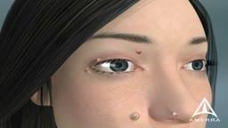 Skin Warts