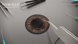 Iris Surgery