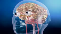 Aneurysm in the Brain and Clipping