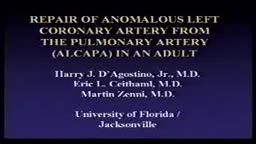 Repair of Anomalous Left Coronary Artery