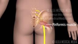 Piriformis Syndrome versus Sciatica