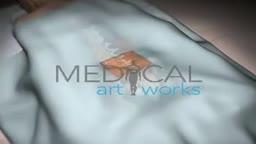 Lumbar spine surgical procedure.