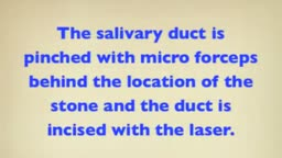 Laser- Removal of Salivary Stone