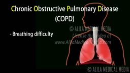 COPD - Chronic Obstructive Pulmonary Disease