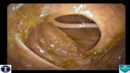 Colon Ascaris Lumbricoides