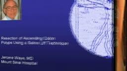 Colon - Polypectomy, Saline lift, Adenomas