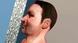 Nasogastric Intubation Into Brain