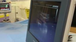 Tunneled Dialysis Catheter Insertion