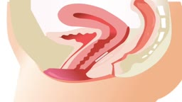 vaginal repair surgery