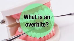 The Importance of Correcting your Overbite