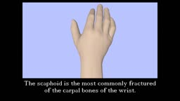 Scaphoid Fracture Screw Fixation