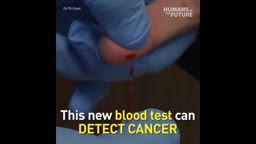 New blood test can help detect and locate cancer