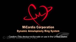 Mitral Heart Valve Ring - Medical & Scientific Video Production