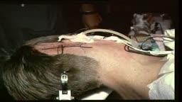 microneurosurgical microvascular decompression in trigeminal neuralgia