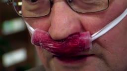 Nasal Bleeding