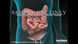 Laparscopic Inguinal Hernia Repair