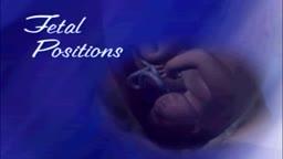 Fetal position in womb