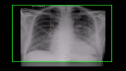 Pulmonary edema, lungs