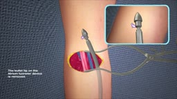 AV  Fistula Graft