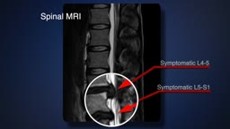 Laser Disc Repair vs Traditional Spinal Fusion Comparison