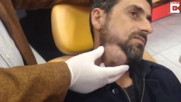 Huge Abscess On Man's Jaw