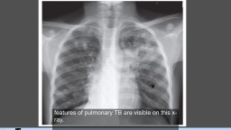 Tuberculosis, Active TB , Chest x ray