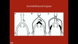 Aortoiliac Occlusive Disease