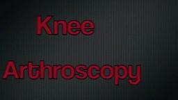 Partial Medial Meniscectomy Arthroscopغ