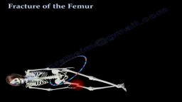 Femur Fracture  fixation